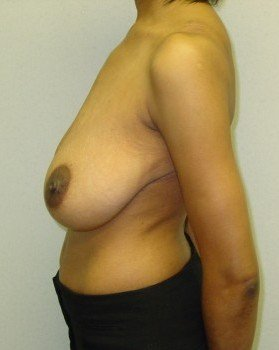 Before-Breast Reduction 20 L