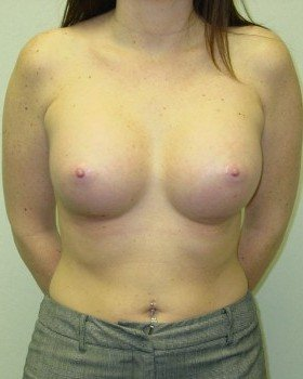 After-Augmentation Patient 20
