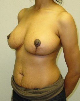 After-Breast Reduction 20 llo