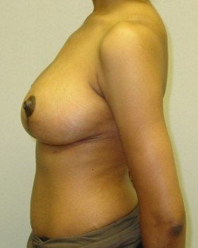After-Breast Reduction 20 L