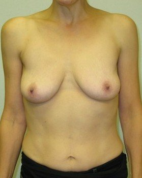 Before-Bilateral Breast Reconstruction After mastectomies (actual patient)