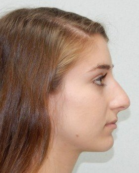 Before-Rhinoplasty image 17