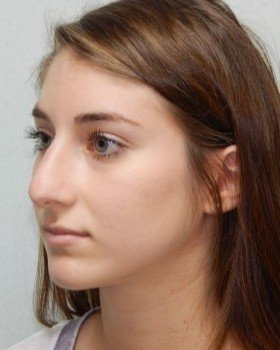 Before-Rhinoplasty Image 18