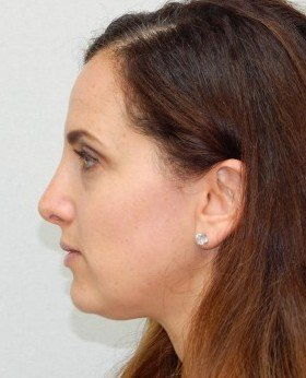 After-Rhinoplasty 13