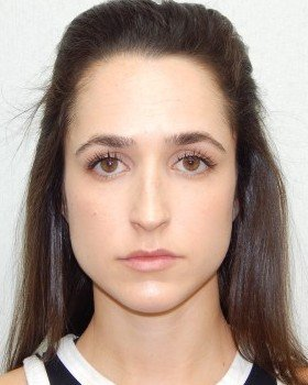 Before-Rhinoplasty Image 24