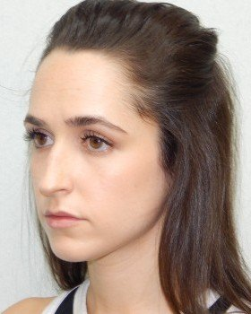 Before-Rhinoplasty Image 25
