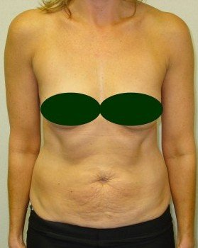 Before-Tummy Tuck 6