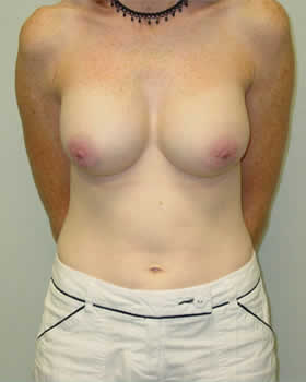 Before-Augmentation Patient 19